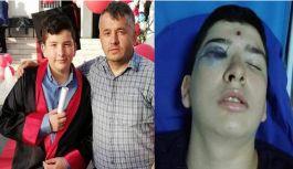 Eskala'da maganda kurşunu 15 yaşındaki gencin gözüne isabet etti